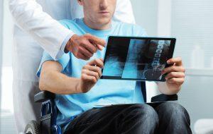 esclerosis multiple diagnostico