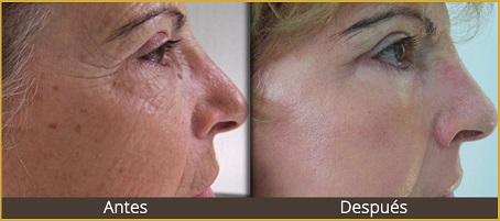 tratamiento estetico facial